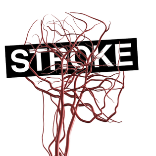Brain_Ateries_Blood_Stroke_ALPHA_35