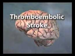 thromboembolic_stroke