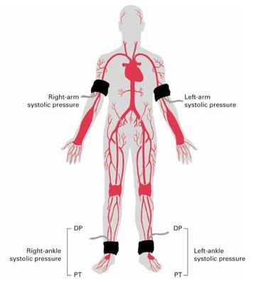 blood_pressure_both_arms30