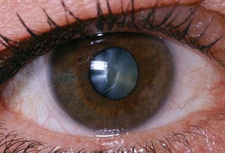cataract90
