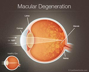 macular-degeneration-diagram