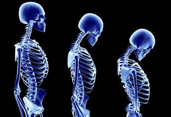osteoporosis70